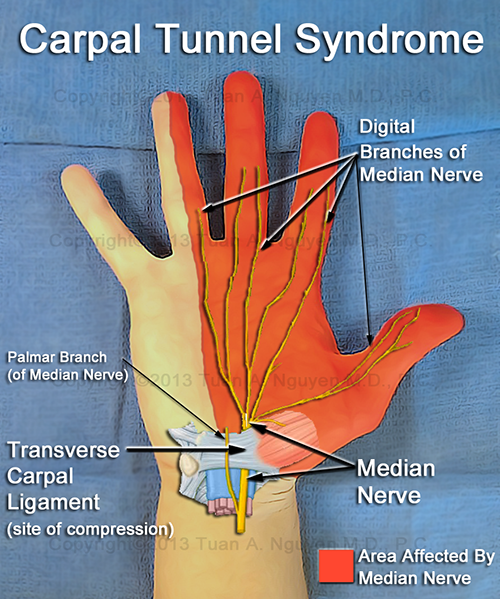 about carpal tunnel syndrome - lake oswego hand surgery - portland, Cephalic Vein