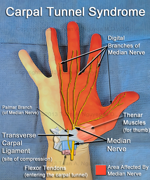 signs and symptoms of carpal tunnel syndrome - portland hand surgery, Human Body