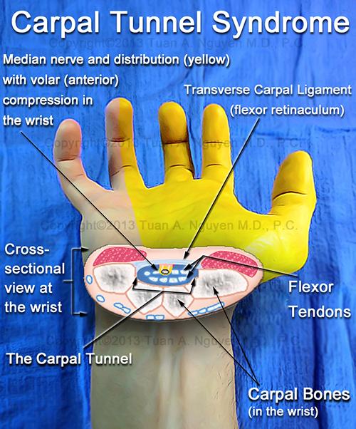 About Carpal Tunnel Syndrome Lake Oswego Hand Surgery Portland