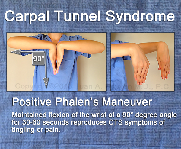 Carpal release physical therapy fist positions